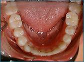 bonded retainer, permenant retainer, teeth,