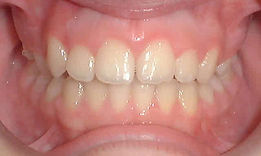 phase1, Early treatment, young kid, smile