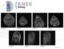 UO-MRI Casebook9