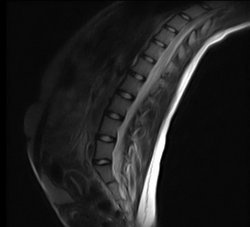 Spine scan in seated extension