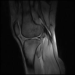 Standing knee scan in sagittal plane