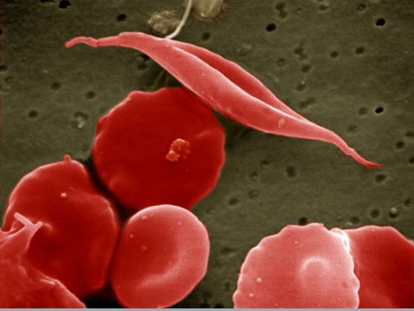 The Connections Between Sickle Cell Anemia and Overall Treatment Around the Globe