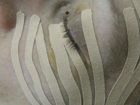 Реабилитация после блефаропластики