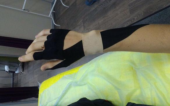 Тейпирование руки при спортивной травме. Врач-реабилитолог Н.Чемисова