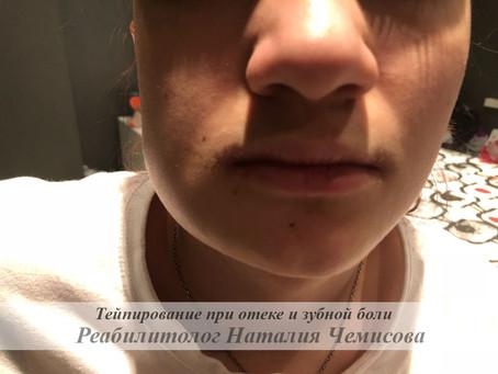 Тейпирование при зубной боли