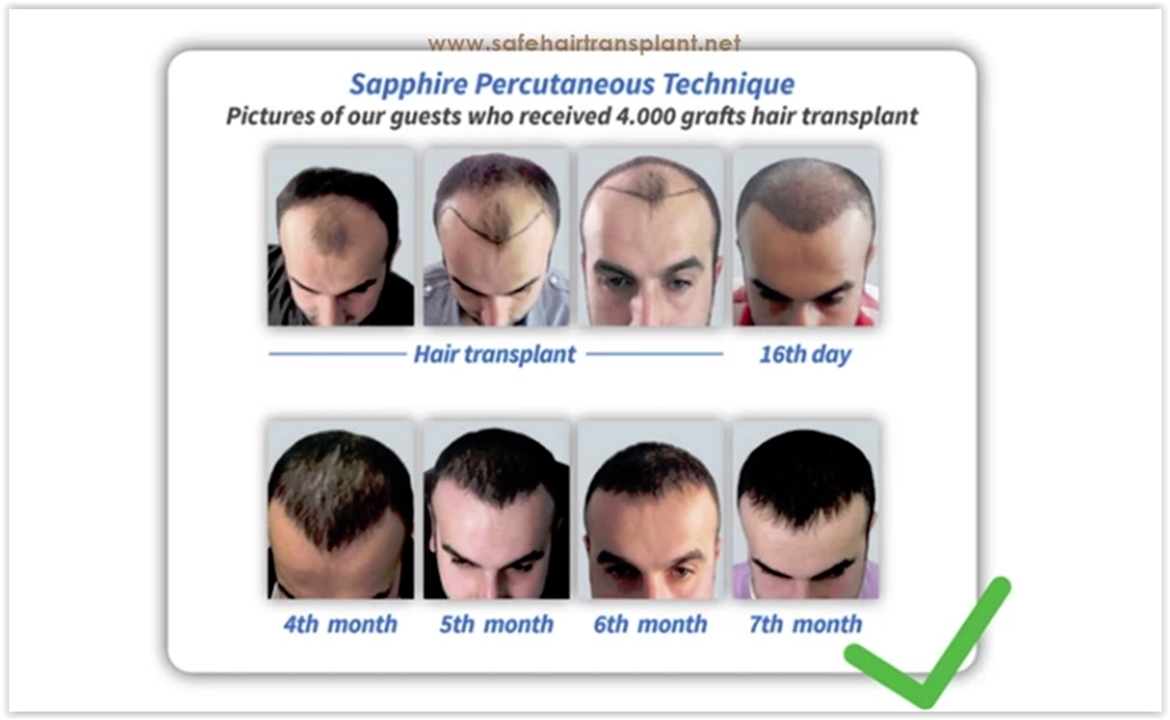 What clinic should be preferred in Istanbul for hair transplantation?