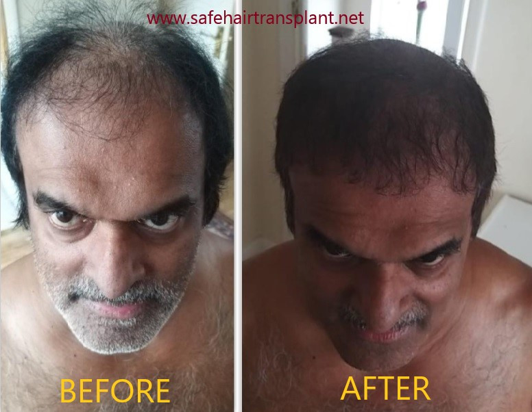 Before After hair transplant Turkey photos 2020
