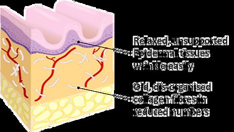 RF Diagram 1