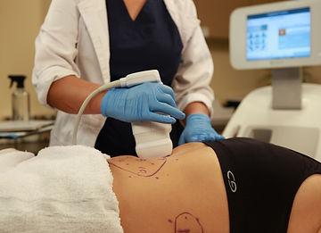 liposonic treatment machine weightloss
