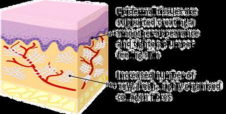 RF Diagram 3