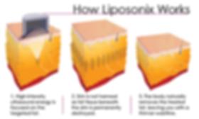 How Liposonics Works