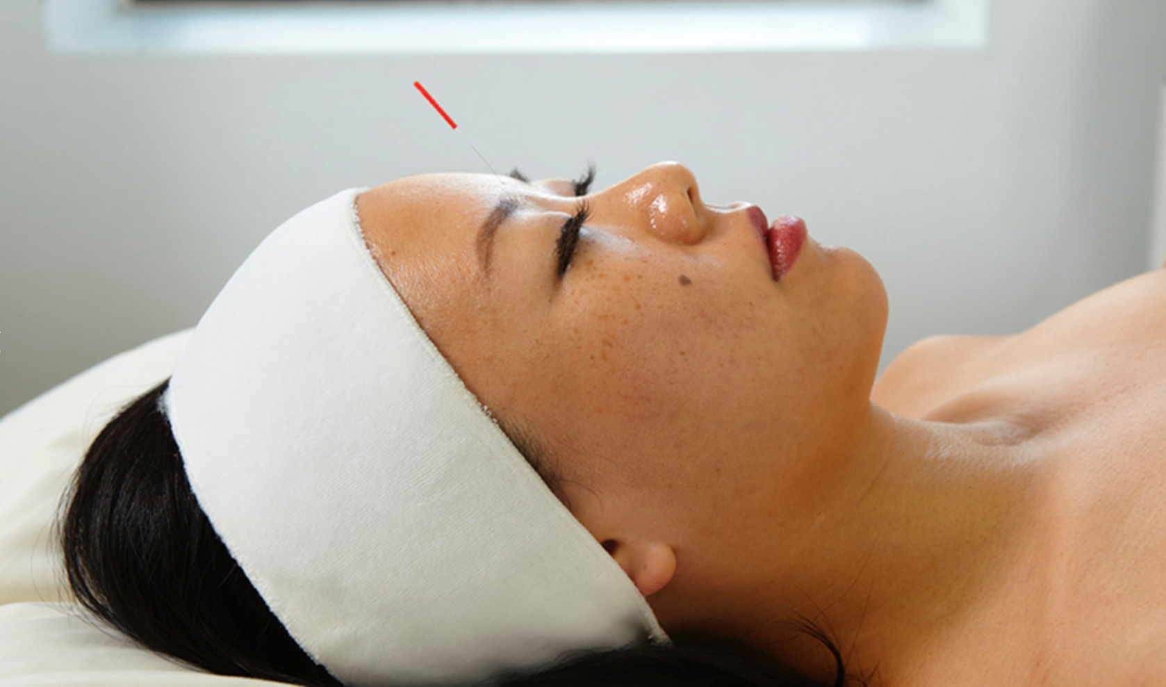 COSMETIC - 12 Treatments Package