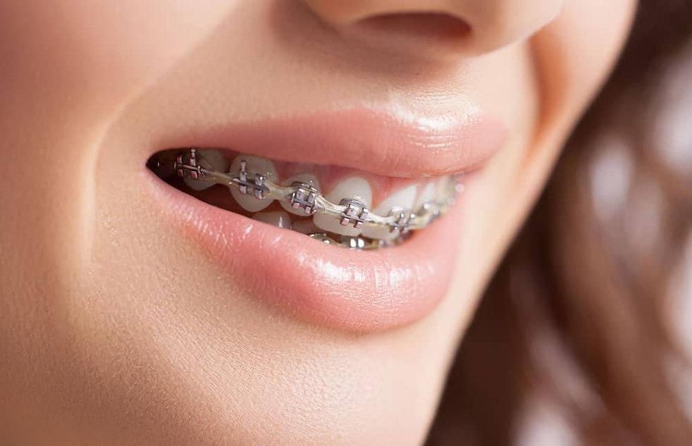 orthodontic-braces-pitt-street.jpg