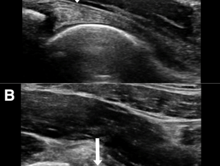 The Diagnostic Value of Ultrasound in Anterosuperior Acetabular Labral Tear