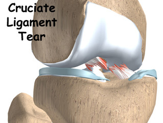 Outcomes of Anterior Cruciate Ligament Reconstruction Using Biologic Augmentation in Patients 21 Yea