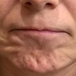顎の梅干しシワ