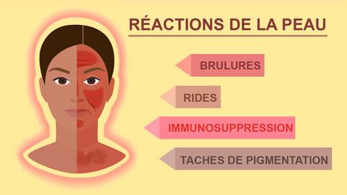 Reactions de la peaux