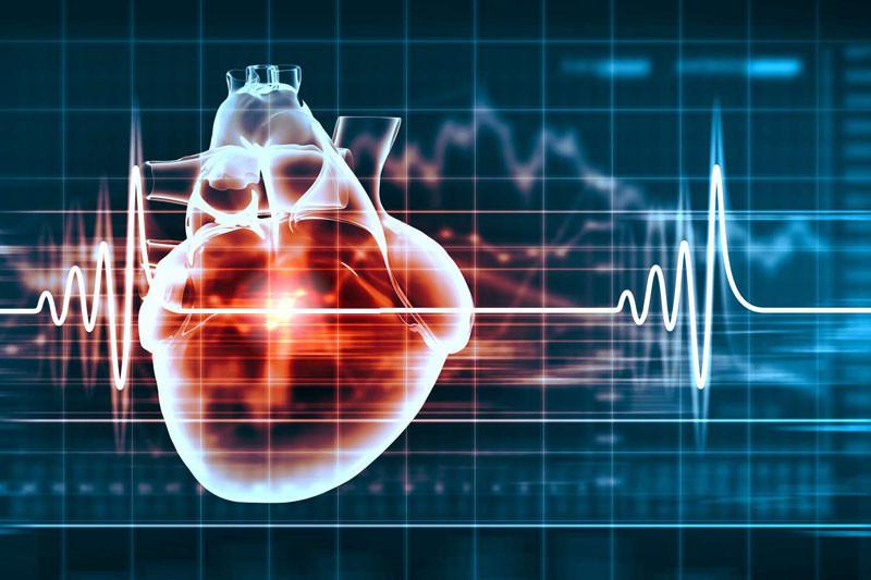 Maladies cardio vasculaires