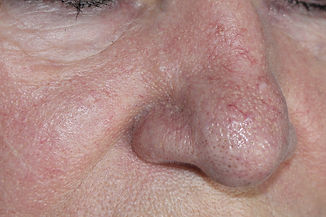 Woman with rosacea, psoriasis skin disea