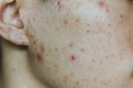 Acne and pimple on the skin.jpeg