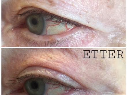 Fjerne overflødig hud på øyelokkene