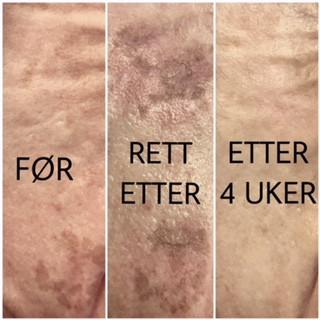 Få ny frisk hud med jevnere hudtone og struktur!
