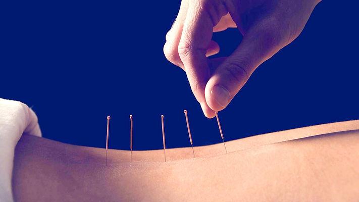 acupuncture%20close%20up_edited.jpg