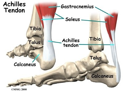 Achilles Heal:  Lessons for life and leadership learned from a tendon