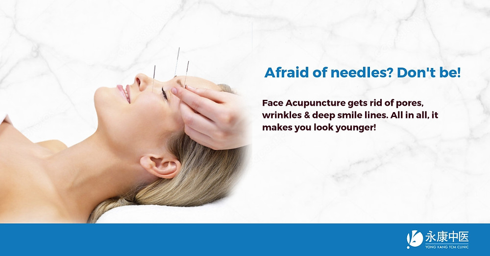 Afraid of needles? Don't be! Face Acupuncture makes you ...