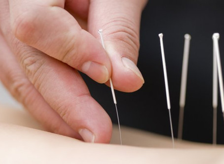 What is Acupuncture and Does It Work?