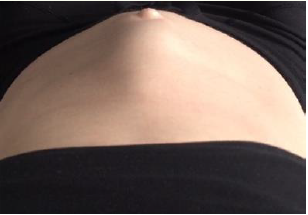 Les abdominaux pendant la grossesse, OUI ou NON ?