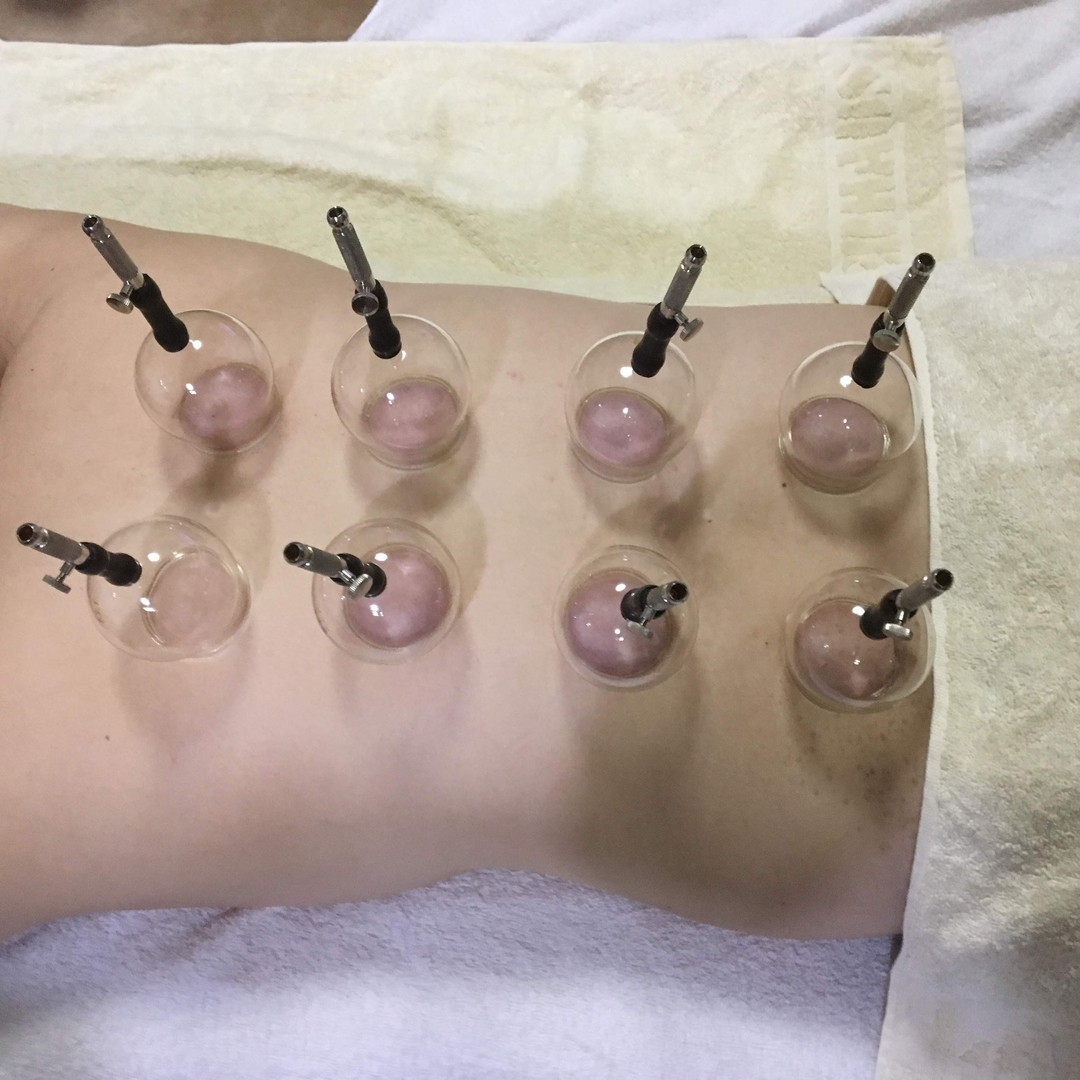 吸角療法(カッピング)