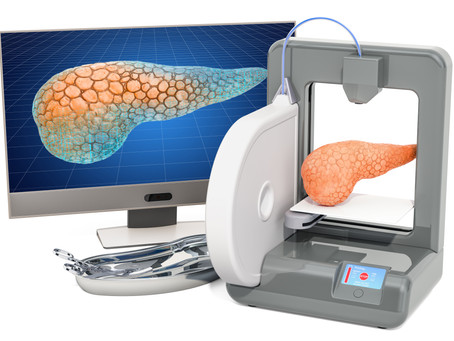 3D Printing in the fight against diabetes