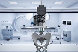 Potential of 3D printing in prosthetics