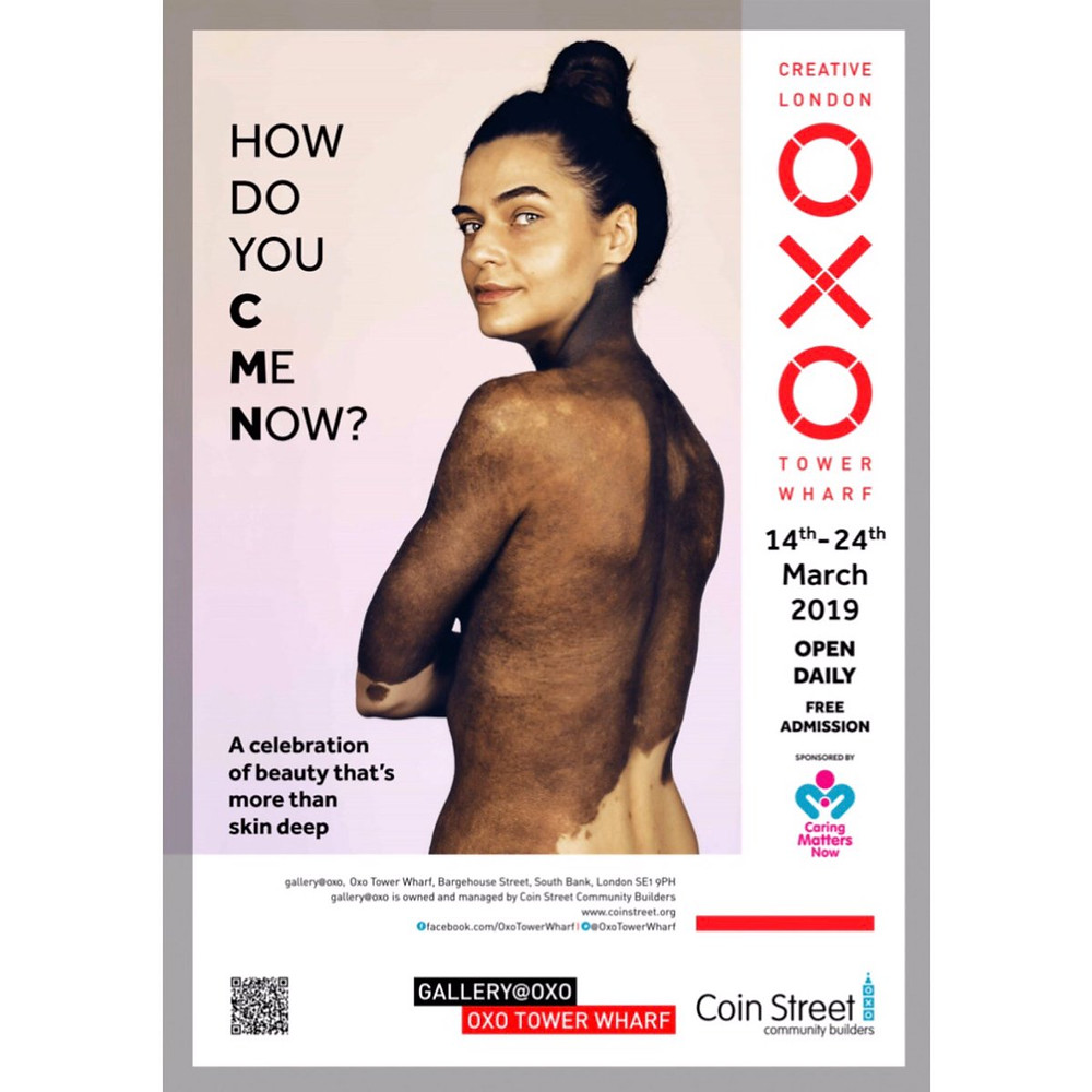 Caring Matters Now, the UK based patient advocacy group for Congenital Melanocytic Nevi, has partnered with photographer Brock Elbank to present this exhibition.