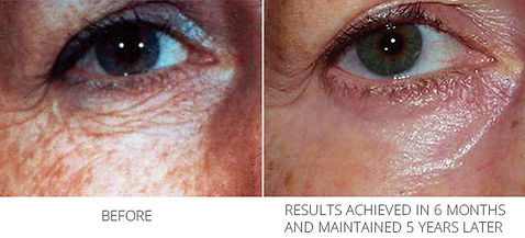 BeforeAfter_Ionzyme_lineswrinkles.jpg