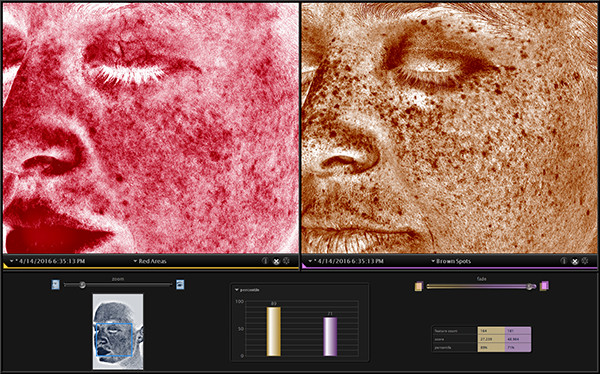 Compare your skins red and brown pigments