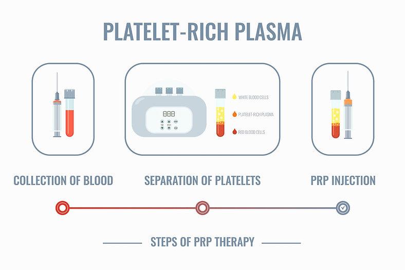 platelet rich plasma diagram explained with images