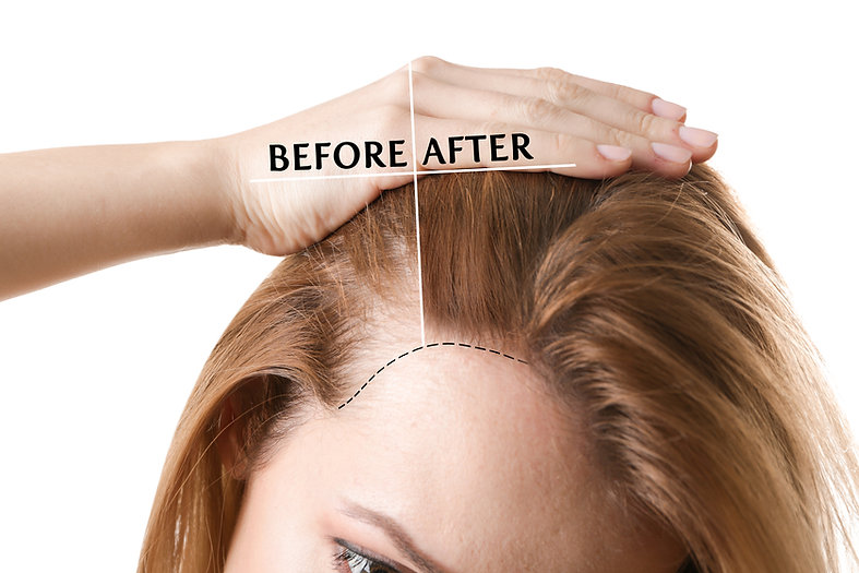 Before and after images of women with PRP hair treatment