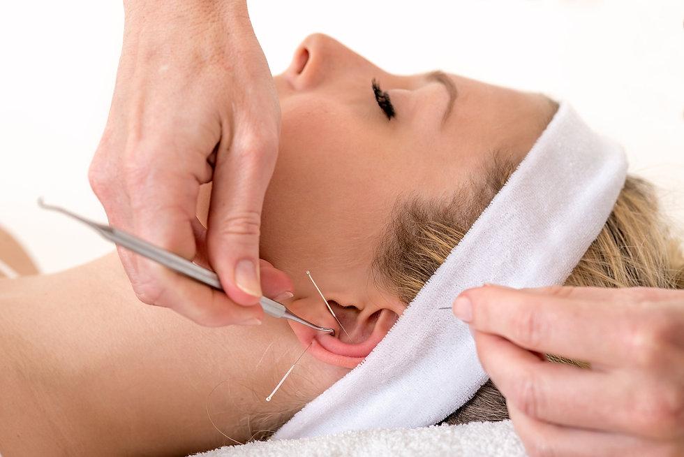 Women receiving Ear detox and acupuncutre treatment.