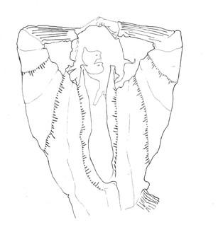 Illustration exercise