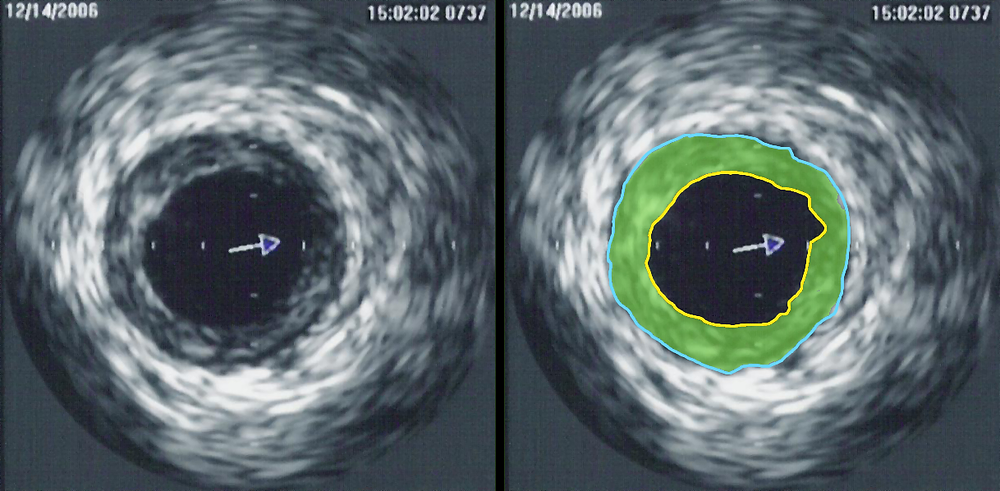 Intravascular ultrasound image of a coronary artery (left), with color-coding on the right, delineating the lumen (yellow), external elastic membrane (blue) and the atherosclerotic plaque burden (green).