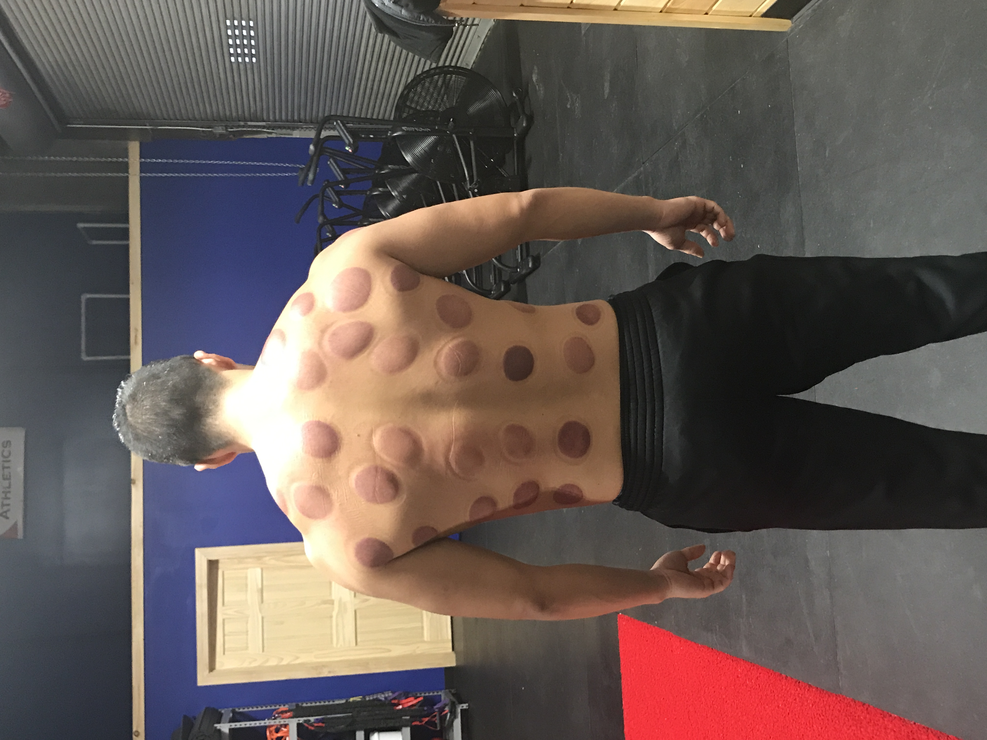 Andy J after his cupping session.