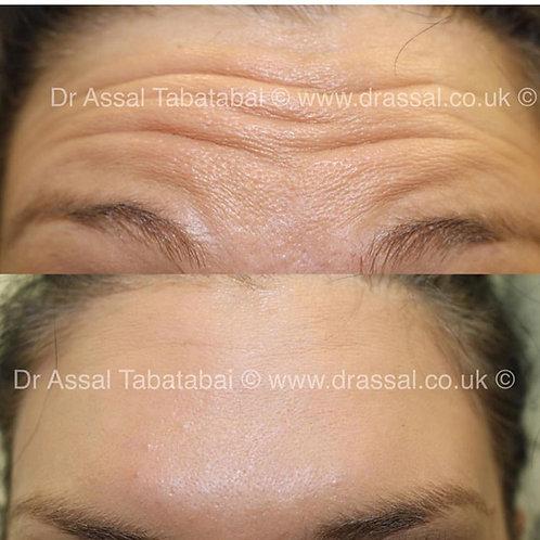 Anti Wrinkle Treatment  (Botox)