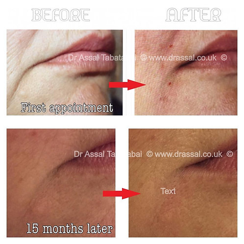 Perioral Filler (smokers lines,marionette lines)