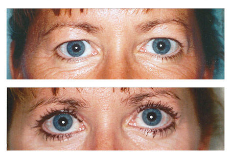 Upper eyelid sugery