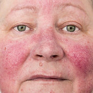 skin issues acne rosacea eczema clear skin
