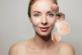 Dull Skin – Why Do We Get It & How Can We Correct It?