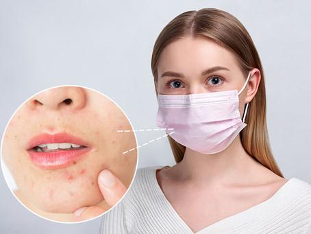 Maskne - 5 Ways To Avoid It...