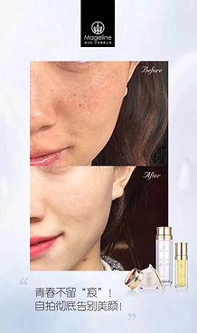 Mageline Beauty Trilogy Nude Beauty Testimonial